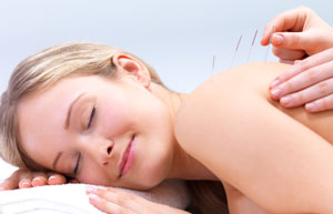 Acupuncture for Shingles, Herpes Zoster in Crowborough
