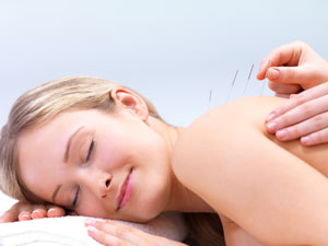 Image of relaxed woman having a fertility acupuncture treatment with needles in her back